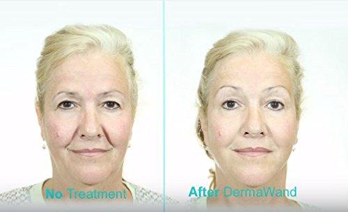 DERMAWAND ANTI-AGING SYSTEM 2